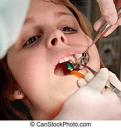 dentaal, procedure, boren, en, vullen, tand