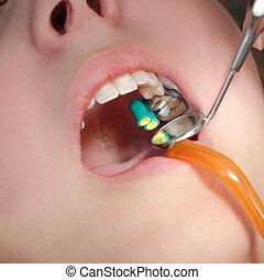 dentaal, procedure, boren, tand