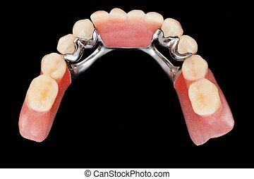 dentaal, skeletachtig, prothese, -, bovenleer, vew