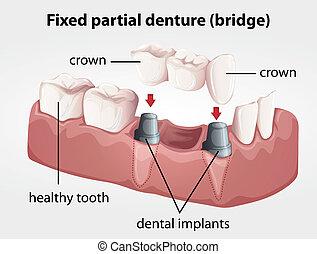 dentadura, puente, fijo, parcial