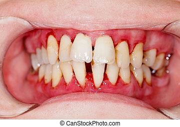 dentaire, après, traitement