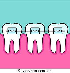 dentaire, arranger, -, bretelles, dents