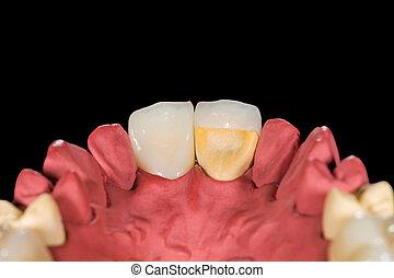 dentaire, céramique, couronnes