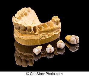 dentaire, céramique, implants