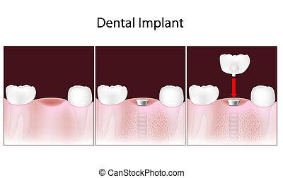 dentaire, implant, procédure, eps10