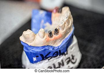 dentaire, implants