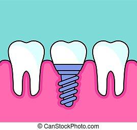 dentaire, -, prosthetics, dents, implant, rang