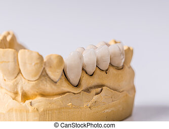 dentaire, prothèse