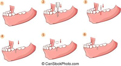 dentaire, vecteur, implant, illustration