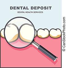 dentaire, -, verre dent, dépôt, sous, magnifier, rang