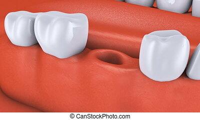 dental, animation, träger