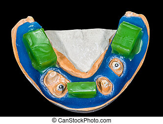 Dental bite registration model