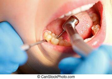 dental, bohrung