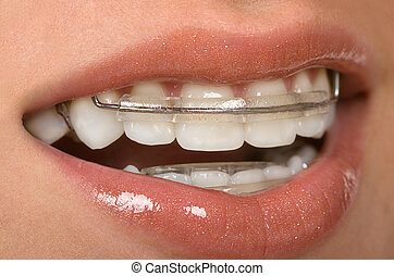 Dental Braces - Girl with dental braces ( retainer)
