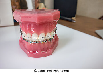 Dental braces model - Close up of braces model on an ...