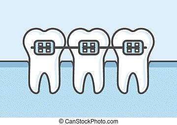Teeth with dental braces vector illustration