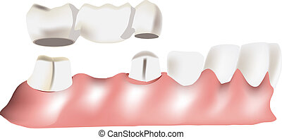 dental bridge - bridge between different teeth,