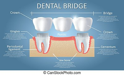Dental bridge concept vector educational poster, diagram