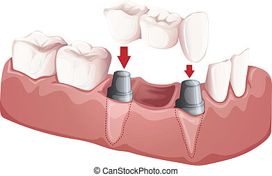 Dental bridge - Illustration of a dental bridge