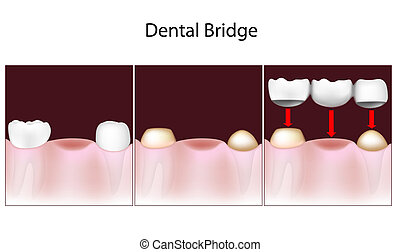 Dental bridge procedure, eps10