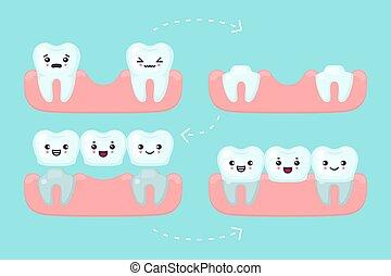Dental bridge setting, tooth stomatology vector concept illustration