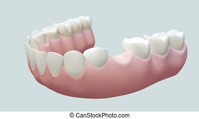 Dental Bridge White - High quality animation 3D showing the...