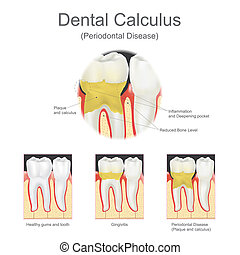 Dental calculus is the calcified plaque, or tartar, that is removed with a dental scalar during regular dentist visits. Vector graphic.