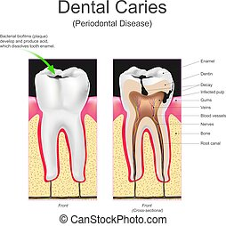 Dental caries is the scientific term for tooth decay or cavities. It is caused by specific types of bacteria. They produce acid that destroys the tooth's enamel and the layer under it, the dentin.