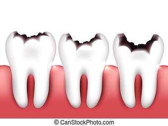 Dental caries, tooth decay, health problem.
