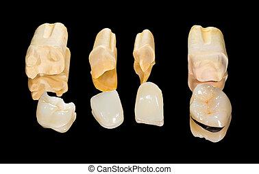 dental, cerámico, coronas