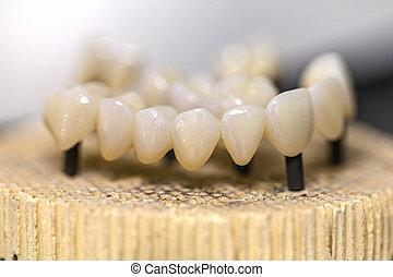 Dental ceramic bridge - Close up photo of burned out dental ...