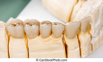 Dental ceramic bridge - Closeup photo of a dental ceramic ...