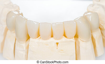 Dental ceramic bridge on isolated white background