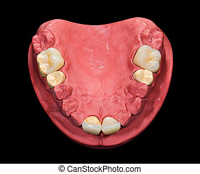 Dental ceramic crowns on gypsum model on isolated black background