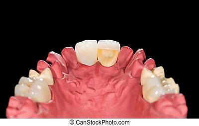 Dental ceramic crowns on gypsum model on isolated black...