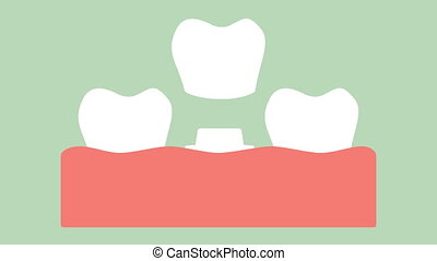dental crown, installation process and change of teeth