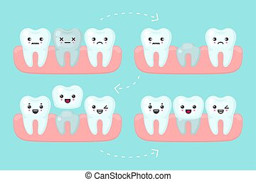 Dental crown setting, tooth stomatology vector concept illustration