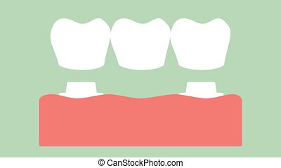 dental crown with bridge, installation process and change of teeth