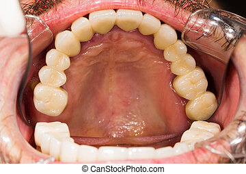 Dental Crowns and Bridges - Entire upper dental teeth bridge...