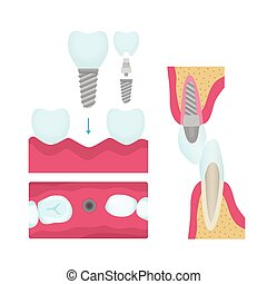 Dental crowns and implantation
