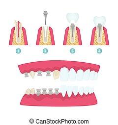Dental crowns and implantation