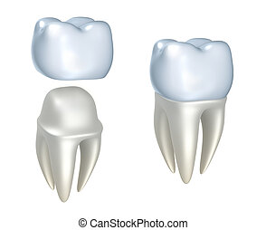 Dental crowns and tooth - Dental crowns and tooth, isolated...