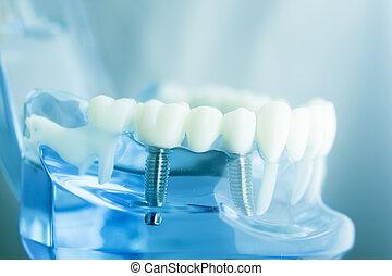 dental, dentes, modelo, odontologia
