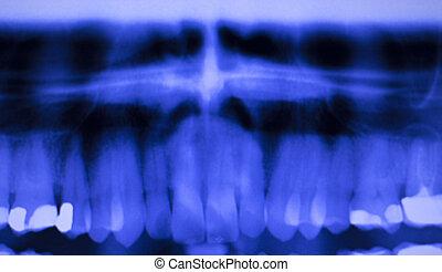 dental, dientes, relleno, dentistas, radiografía, exploración