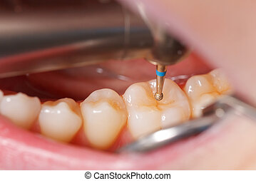Dental drilling - The dentist cleans the tooth with drill