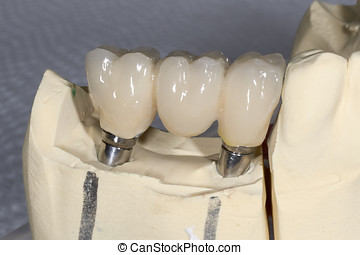 dental, elementos, implante, tres