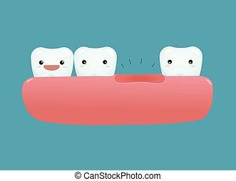 dental, felande tand