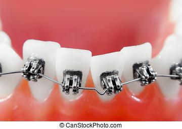 dental, fierros, súper, macro, dientes torcidos, superficial, profundidad campo