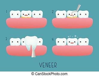 dental, folheado, dente