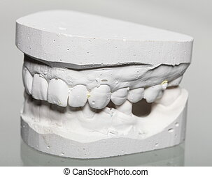 Dental gypsum model mould of teeth in plaster - Dental...